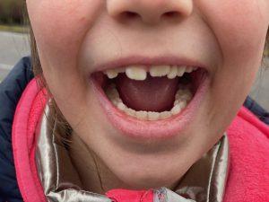 grote mensen tand los